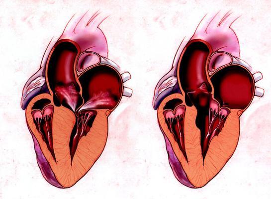 Scompenso cardiaco