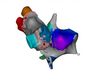 Alazione Tachicardia atriale