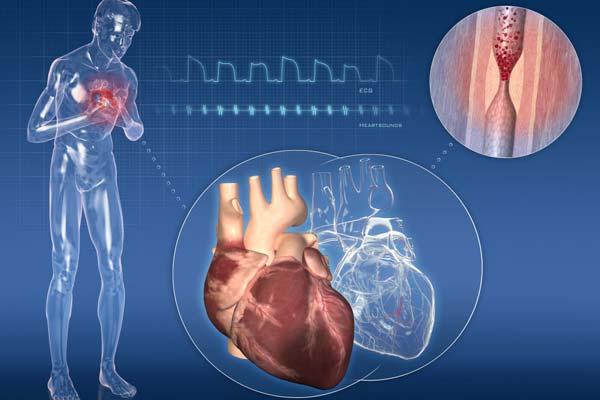 Cardiopatia ischemica ed infartuale